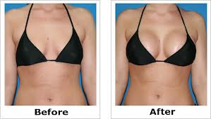 Natural Breast enlargement cream-Natural breast augmentation without breast enhancement surgery-breast lift-boob job costs