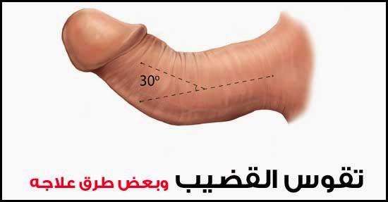 علاج انحناء الذكر للأسفل سريع وفعال