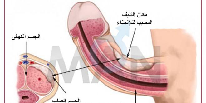 علاج اعوجاج العضو الذكري للاسفل سريع ومضمون