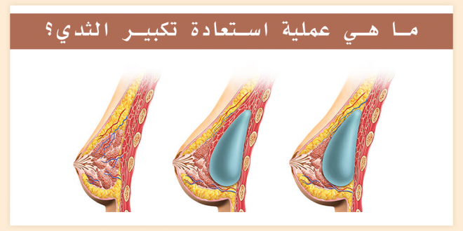 What is the process of restoring breast augmentation