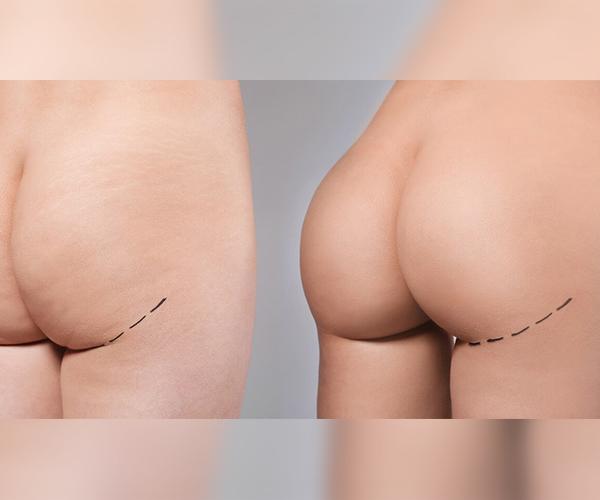 brazillian butt lift process