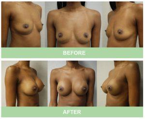 علاج تكبير الثدي يعطي الصدر الكبير و المتناسق سحرا خاصا لشكل المرأة. عادة ما يتطور الثدي خلال فترة البلوغ ، وبالتالي يرمز إلى بداية الأنوثة والأمومة. تشعر الفتيات والنساء ذوات الصدر المسطح أو شبه المسطح أحيانًا بعدم الجاذبية وثقة منخفضة. لكن ما هي الخيارات المتاحة أمامهن لزيادة حجم الثدي؟ نحن نعلم أن العديد من المشاهير قد زادوا من حجم صدورهم من خلال جراحة زراعة الثدي. لكن العديد من النساء يخشين الجراحة ، وقد يكون من المستحيل عليهن تحمل تكلفة الجراحة.