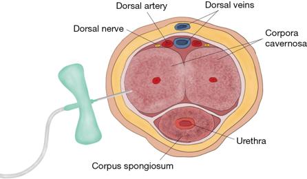 cavernous tissue